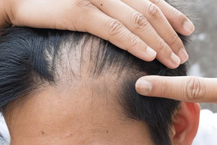 olej rycynowy na włosy